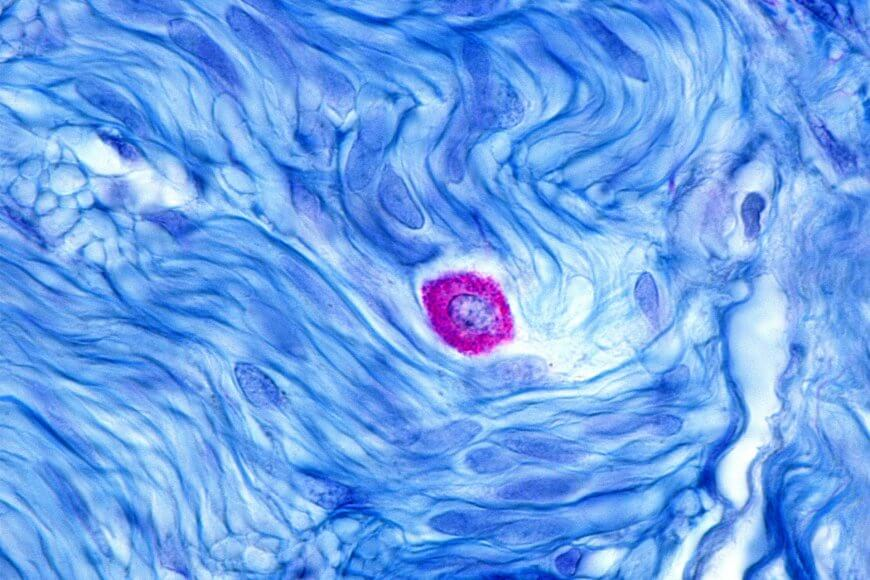Microscopic enlargement of a mast cell