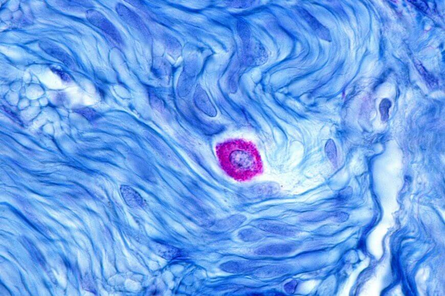 Mikroskopische Vergrößerung einer Mastzelle